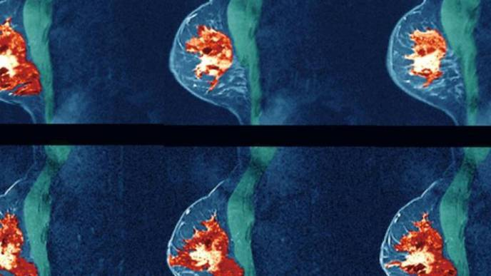 New Study Suggests Women with Dense Breast Tissue May Benefit from Regular MRIs