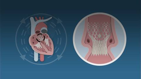 New Opportunities to Manage Aortic Stenosis with TAVR