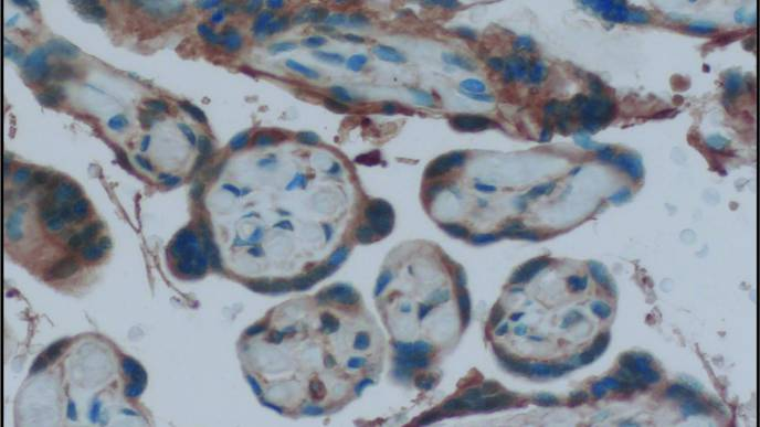 Estrogen Receptors in Mom's Placenta Critical During Viral Infection