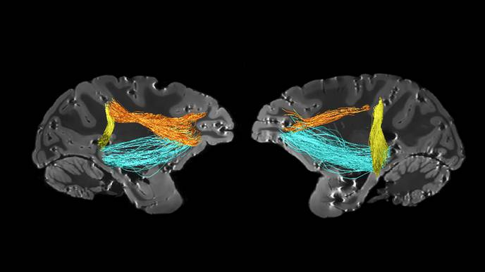 A Surprising New Source of Attention in the Brain