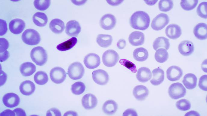 A Look at a Key Finding in the Fight Against the Deadliest Form of Malaria