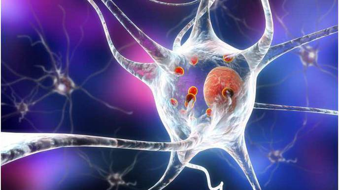 Function Identified of 'Mystery Protein' That Kills Brain Cells of People with Parkinson's