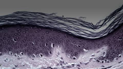 Strategies for Stronger Skin: Tissue Regeneration & Wound Healing