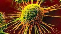Study of Rare Cancer Yields Therapeutic Clues to Combat Drug Resistance