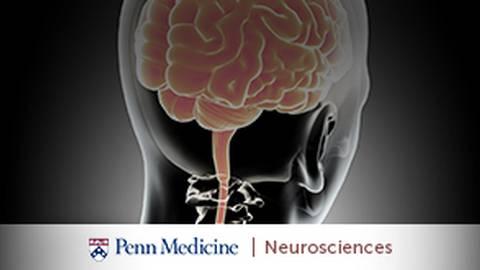 4 Latest Advances in Epilepsy Treatment at Penn