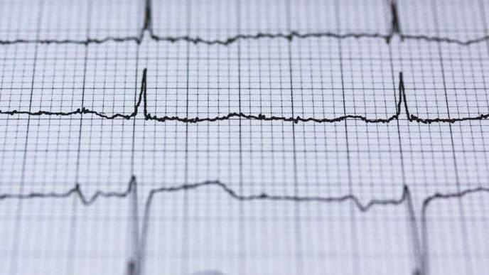 AI: A New Tool for Cardiac Diagnostics