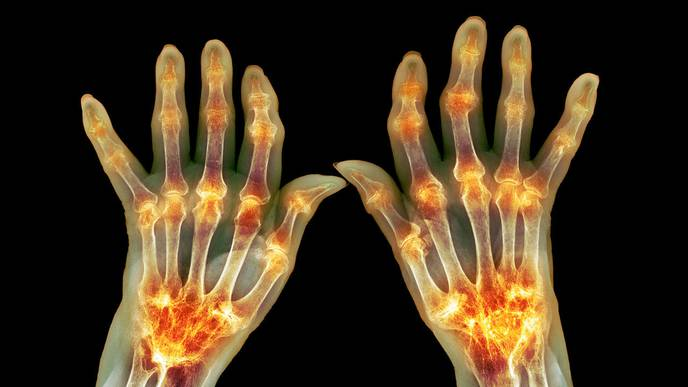 Respiratory Diseases Increase Risk for Rheumatoid Arthritis