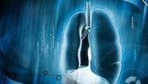 AI Identifies Lung Cancer Type With 97% Accuracy