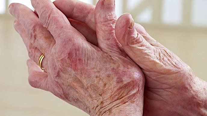 Research Opens the Door to Better Understanding of Osteoarthritis