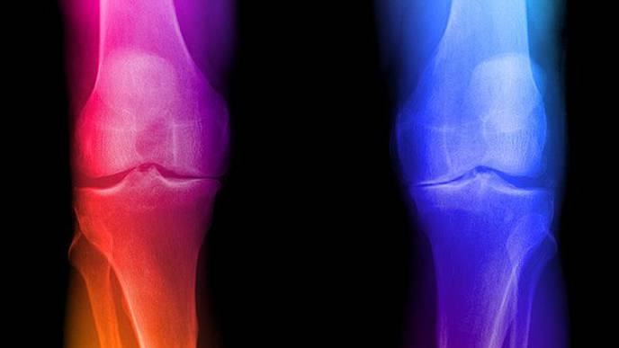 Autologous Chondrocyte Implantation on the Knee: M-ACI Shows Comparable Benefits to Therapeutic Alternatives