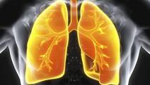 New Treatment Options for Nontuberculous Mycobacterial Lung Disease