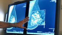 Study: Healing Process After Breast Cancer Surgery May Trigger Cancer to Spread