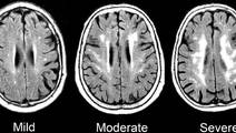 Chronic Inflammation Biomarker Linked to Dementia