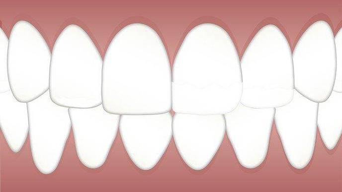 Study Investigates Cellular Mechanism Behind Dental Fluorosis