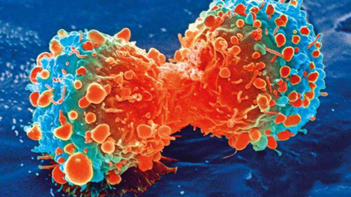 Cancer Patients Over 65, on Multiple Medicines, Are at Higher Risk of Hospitalization
