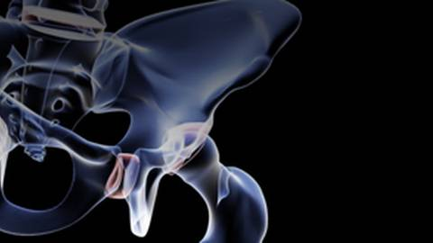 Treating Hip Fractures in Elderly Patients: An Orthopedic Surgeon's Perspective