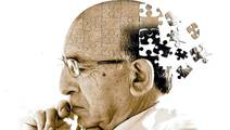 Alzheimer's may be Caused by Immune System Eating Brain Connections