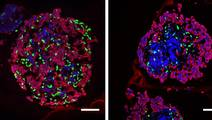 Low Thyroid Hormone Before Birth Alters Development of Fetal Pancreas