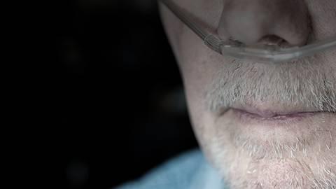 Impacts of Patients Underreporting COPD Exacerbations