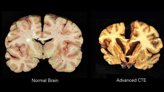 A Survey of Former NFL Players Raises Questions About Diagnoses of Degenerative Brain Disease
