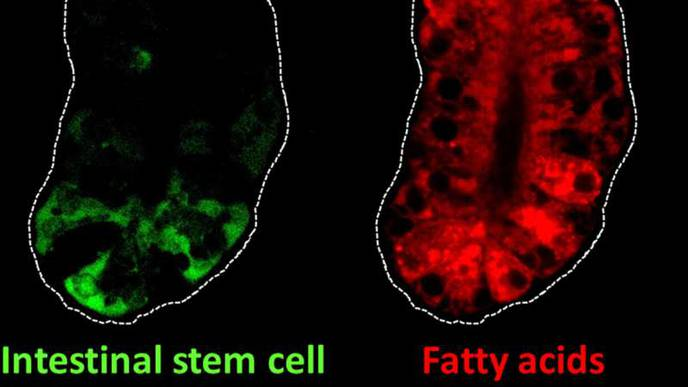 Intestinal Stem Cell Genes May Link Dietary Fat & Colon Cancer