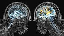 Study Shows Brain Differences in Athletes Playing Contact Sports
