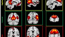 Brain Imaging Shows Damage to Youth Football Players