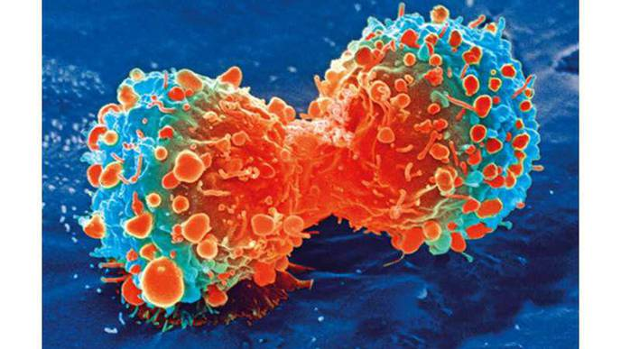 Researchers Identify Potential Revolutionary New Drug Treatment for Fatal Childhood Cancer