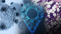New Technology for Profiling Unique Genetic Makeup of Myeloma Tumor Cells