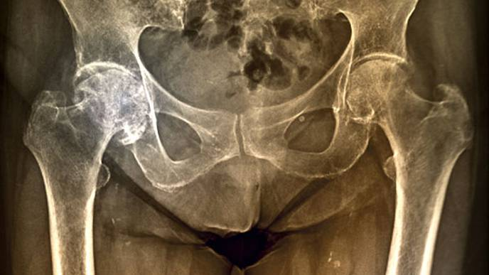 Factors Predictive of Hip Osteoarthritis Progression