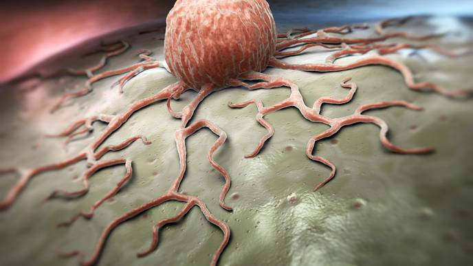 USC Study Shows How Tumor Cells Circulating in the Blood Target Distant Organs