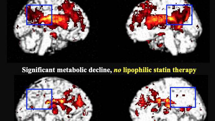 FDG-PET Shows Lipophilic Statin Users at Higher Risk of Dementia