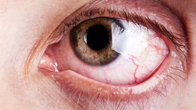 Patients With Migraine at Greater Risk for Dry Eye Disease