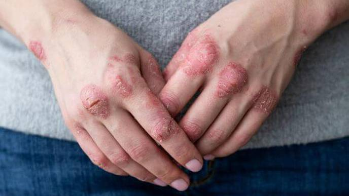 Overall Pregnancy, Live Birth Outcomes Unchanged in Psoriasis