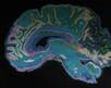 Uncovering the Brain Bases and Genetic Causes of Autism