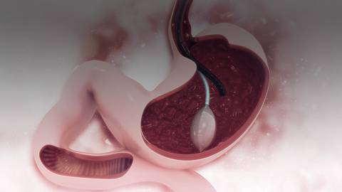 Exploring Endoscopic Bariatric Weight Loss: What Do We Need to Know?