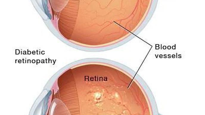 A Healthy Lifestyle for Cardiovascular Health Also Promotes Good Eye Health