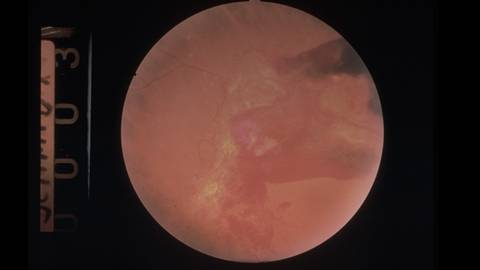 Seeing Eye to Eye: Case Series on Treatment Strategies for Diabetic Retinopathy-PDR/DME