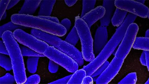 Scientists Uncover Ancient Bacterial Resistance From Era Before Antibiotics