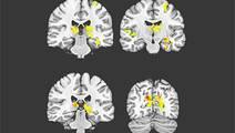 Stiff Vessels, Low Blood Flow in the Brain Forewarn of Dementia
