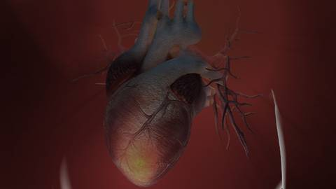 Clinical Implications of Heart Failure Trials Presented at the ACC.20/WCC Virtual Late-Breaker Session