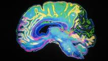 Response to Daily Stressors Affects Cognitive Health of Older Adults
