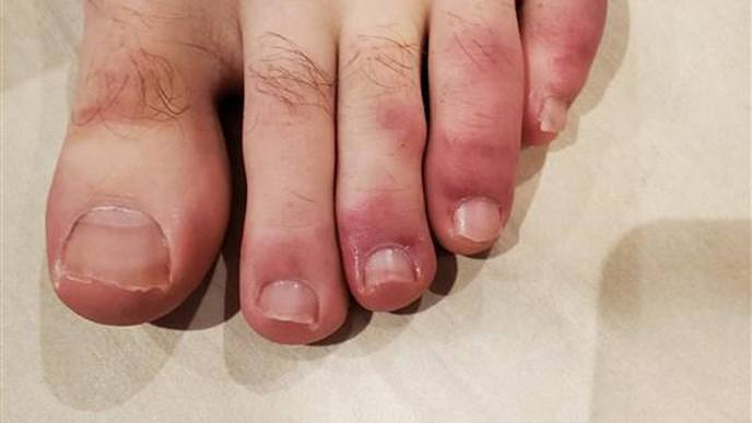 What Are 'COVID Toes'? Dermatologists, Podiatrists Share Strange Findings