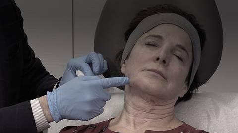 Advances in Aesthetic Medicine: PLLA Technique Demonstration
