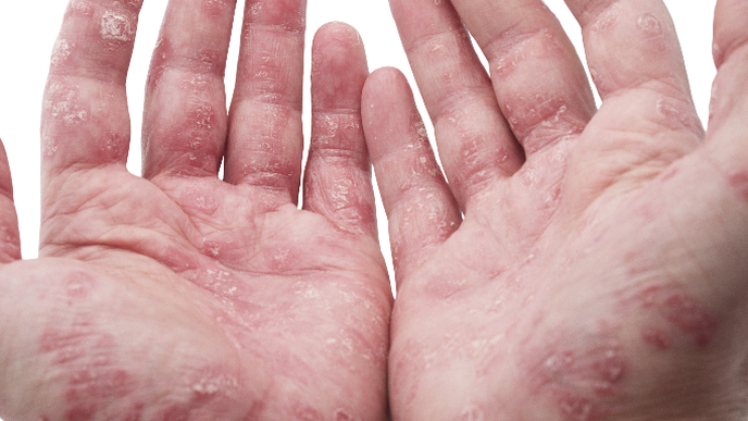 High Prevalence of Neuropathic-Like Pain in Psoriatic Arthritis