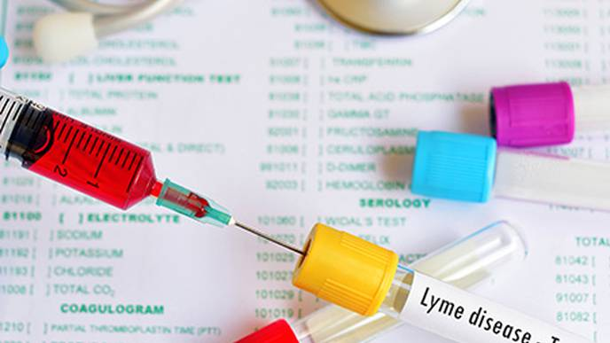 New Techniques Can Detect Lyme Disease Weeks Before Current Tests