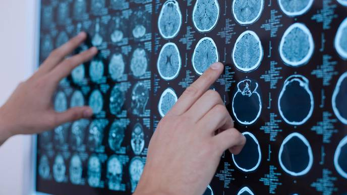 How Ultrasound Methods May Help Curb Parkinson's