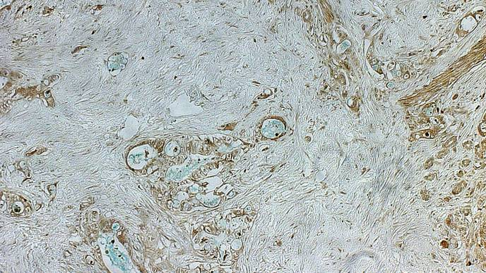 Inherited Pancreatic Cancer Risk Mutation Identified