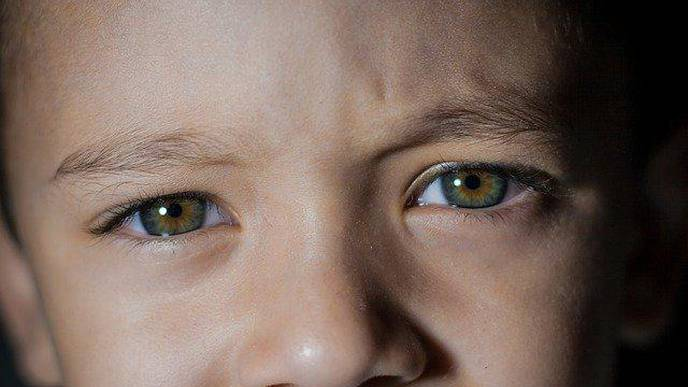 Blood Pressure Connected to Eye Health in Young Children