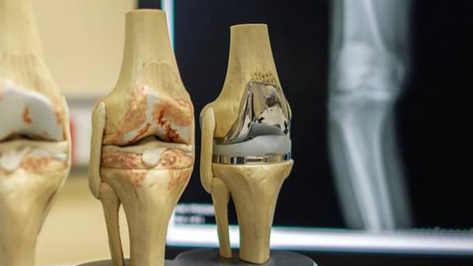 Personalized 3D Printed Knee Implant Could Bring Relief to Thousands of Arthritis Sufferers